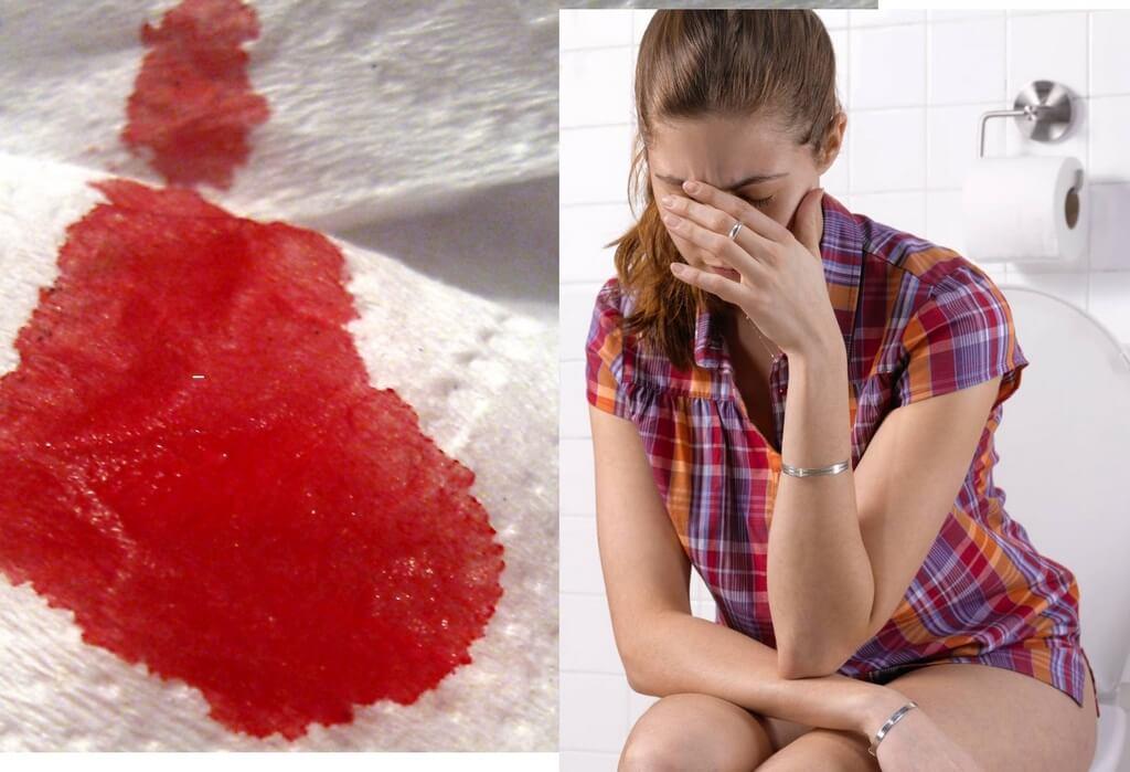 кровь на туалетной бумаге при беременности