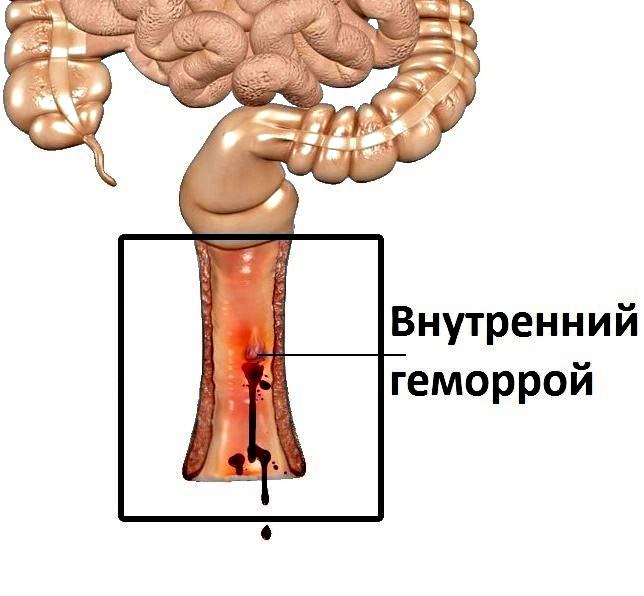 схема расположения внутреннего геморроя