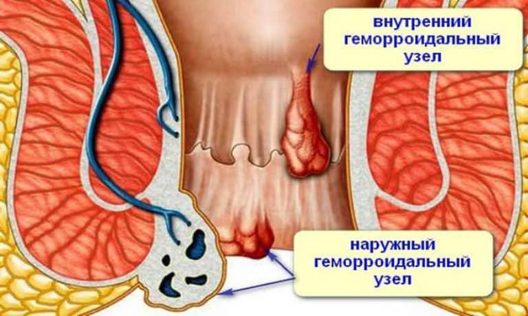 анатомия внутреннего и наружного геморроя