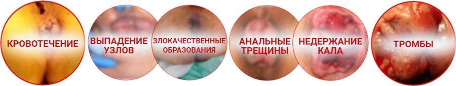 осложнения после геморроя