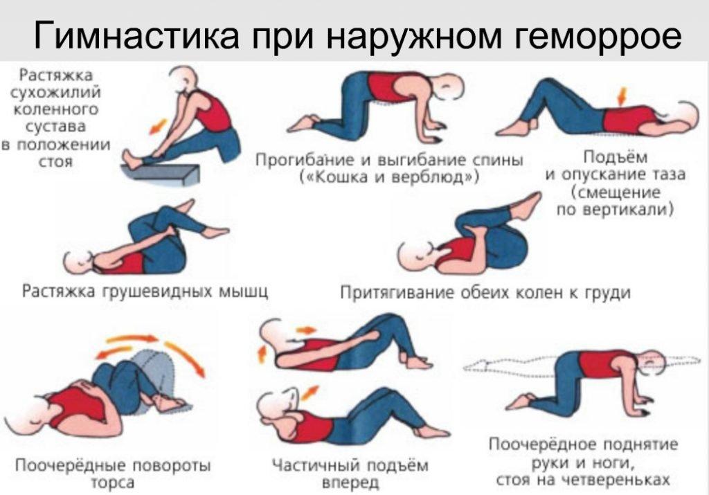 гимнастика при наружном геморрое