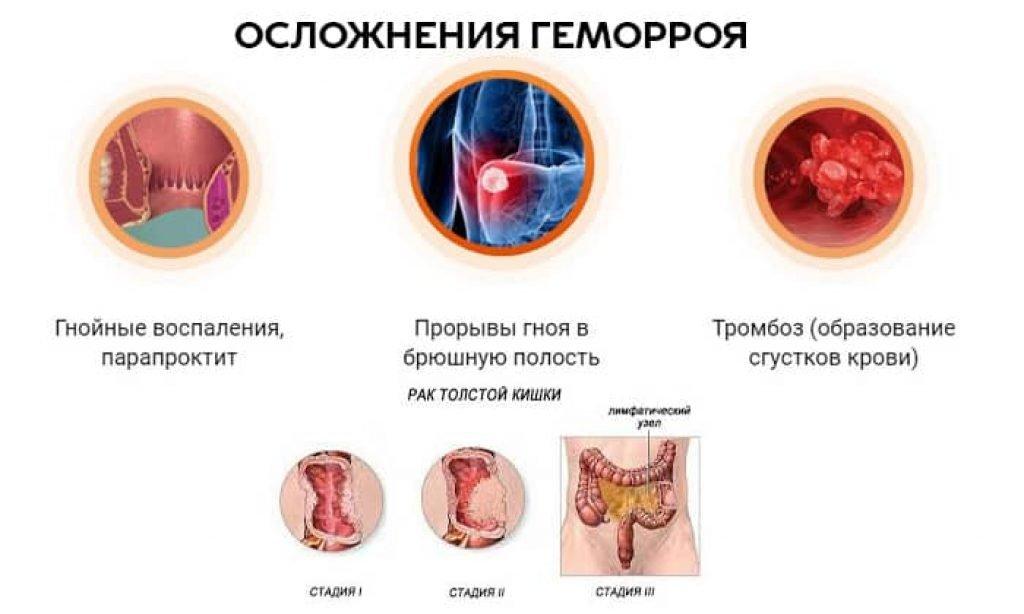Лечение Геморроя У Женщин Отзывы