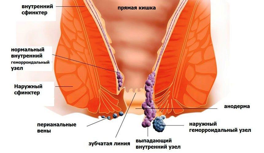 рисунок геморроидальние узлы