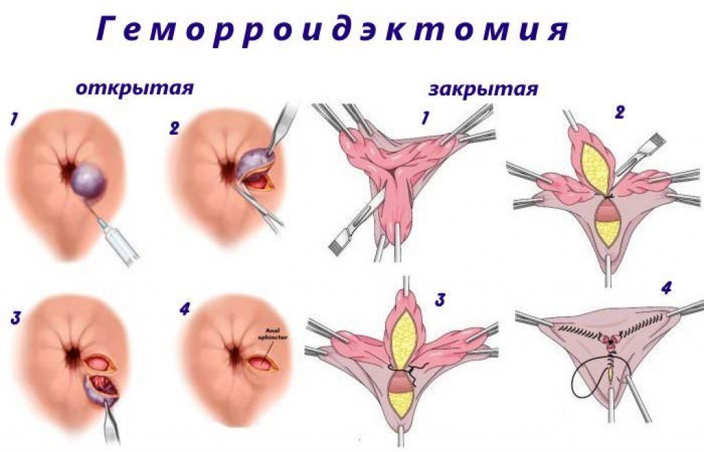 геморроидектомия в закрытой и открытой форме