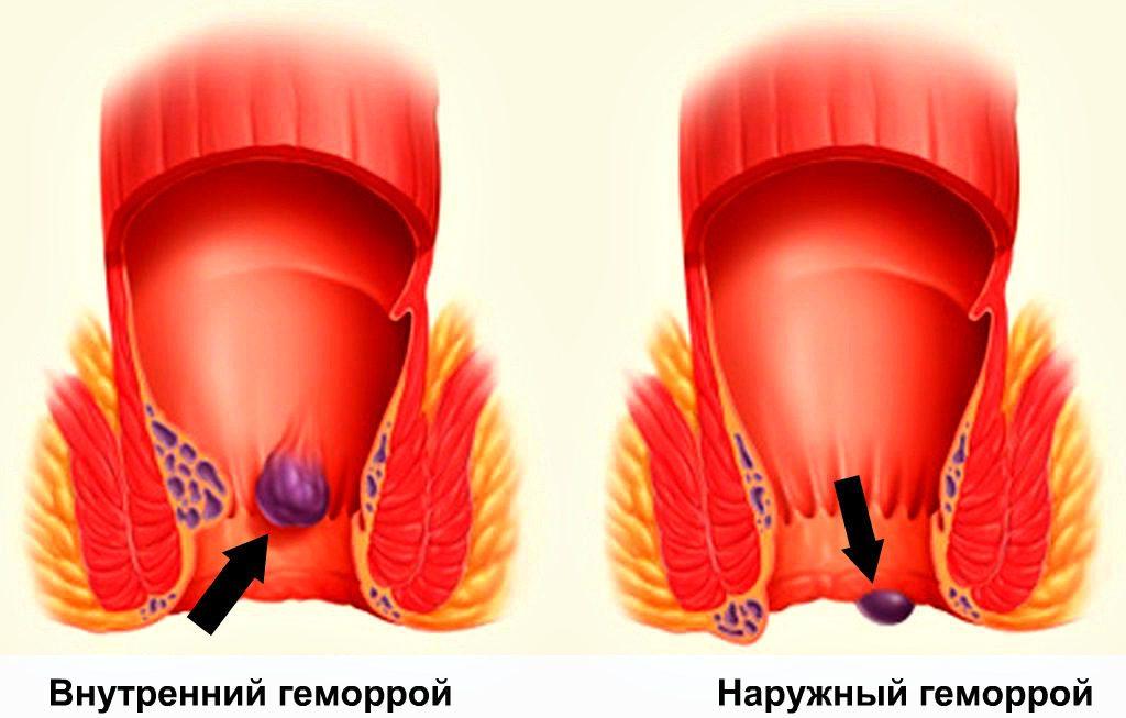внутренний и наружный георрой