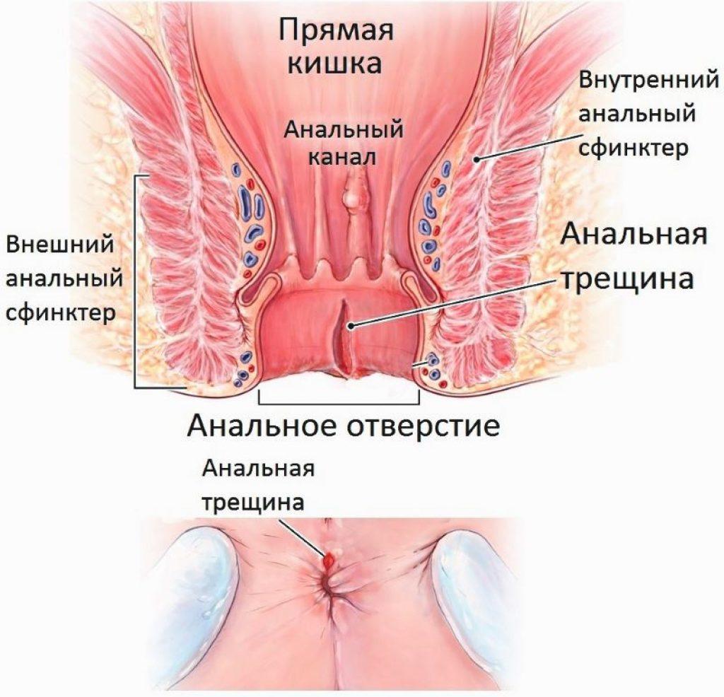 Геморрой Узел Лечение