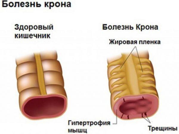 Как выглядит кишечник при болезни крона