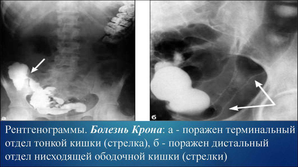 Диагностика болезни Крона