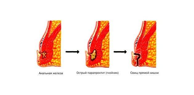 стадии и осложнения парапроктита