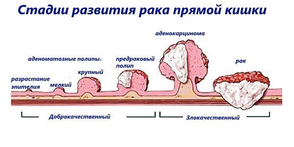 стадии развития рака прямой кишки